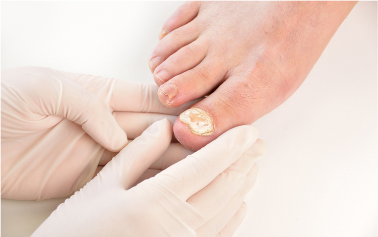 Fungal infections of the nails