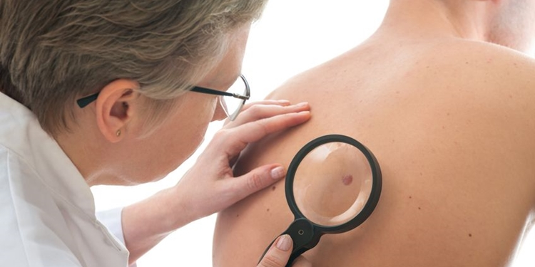 Mohs Surgery – Conquering Skin Cancer