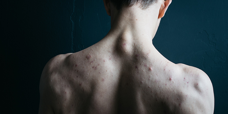 Acne – Block or Ban the Blemish on your Life
